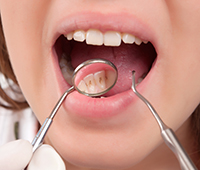Dental plaque Ayurvedic treatment