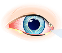 What is Eye discharge Ayurvedic treatment