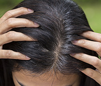 Premature greying Diagnosis