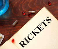 Rickets Ayurvedic treatment